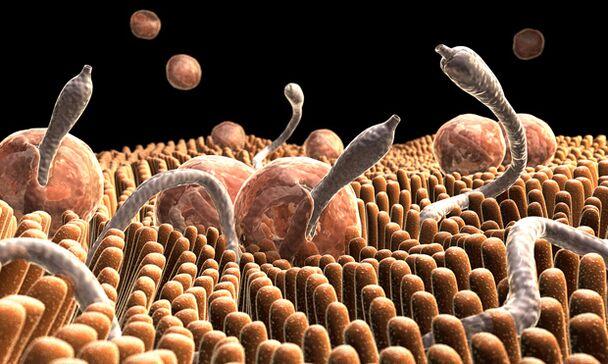 paraziták hogyan lehet azonosítani és eltávolítani